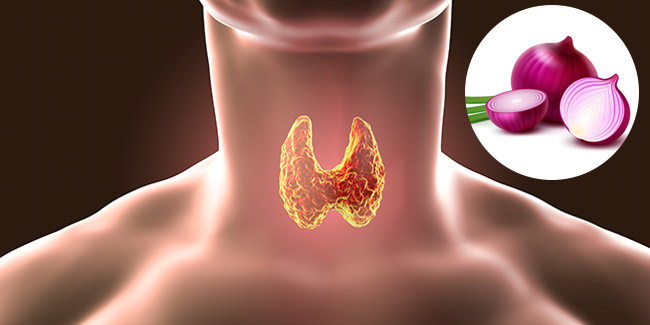 thyroid-and_onion